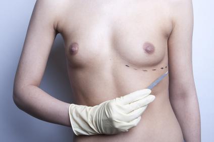 Berufshaftpflichtversicherung: Keine Haftung nach Schönheits-OP durch Wundinfektion